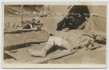 Wounded Bandits in the Miliary Hospital at Columbus, N.M.